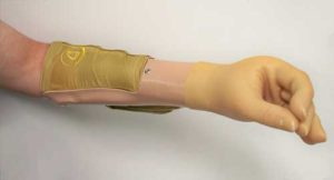 CJ Socket Prosthetic Lower Arm