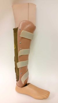 CJ Socket Prosthetic Leg - Below the knew