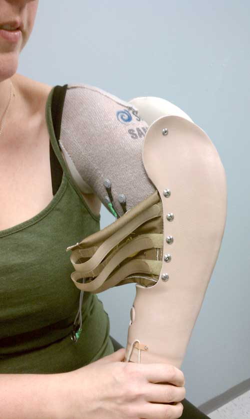 CJ Socket Prosthetic Arm