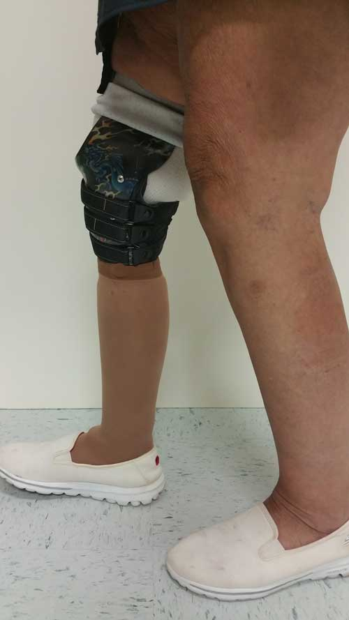 CJ Socket Prosthetic - Below the Knee