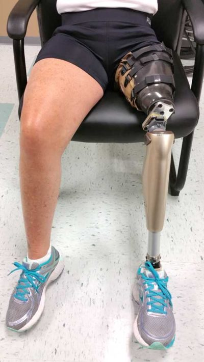 CJ Socket Prosthetic Leg - Above The Knee Amputee
